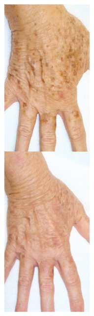 mains-centre-laser-medecine-esthetique-marseille-1