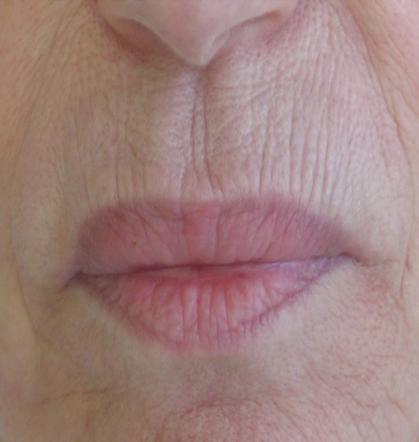 soins-profonds-remodelage-visage-levres-centre-laser-medecine-esthetique-marseille-1-0