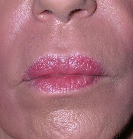 soins-profonds-remodelage-visage-levres-centre-laser-medecine-esthetique-marseille-1-1