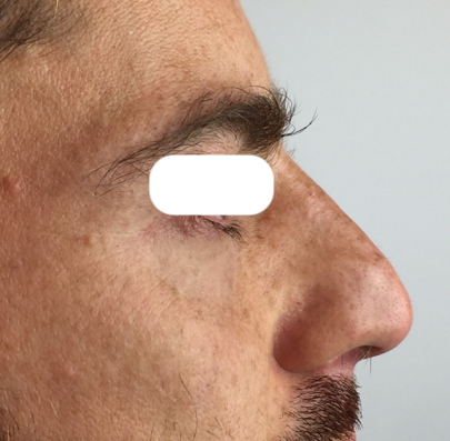 soins-profonds-rhinoplastie-medicale-centre-laser-medecine-esthetique-marseille-5