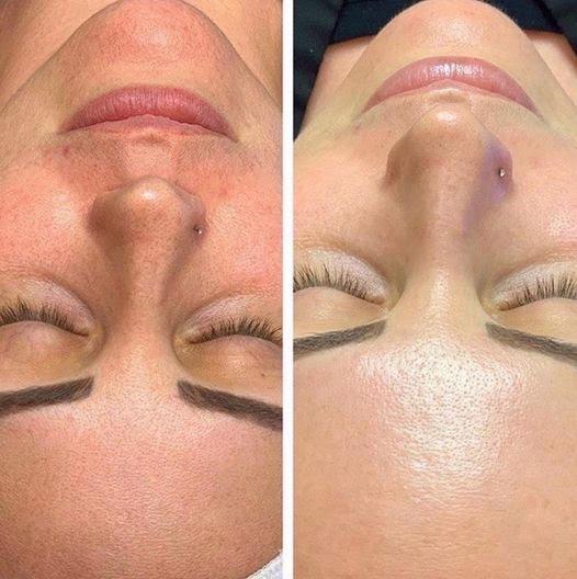 visage-hydrafacial-centre-laser-medecine-esthetique-marseille-1