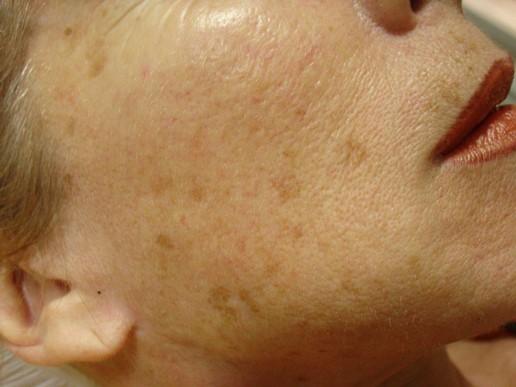 visage-peeling-moyen-centre-laser-medecine-esthetique-marseille-2-0