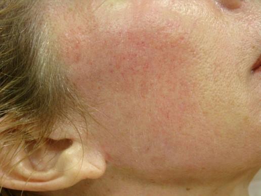 visage-peeling-moyen-centre-laser-medecine-esthetique-marseille-2-1