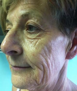 visage-peeling-phenol-centre-laser-medecine-esthetique-marseille-1-0