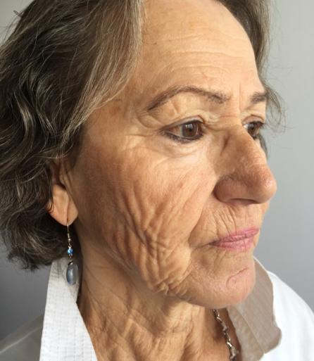 visage-peeling-phenol-centre-laser-medecine-esthetique-marseille-2-0