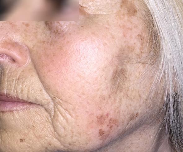 visage-peelings-peeling-depigmentant-centre-laser-medecine-esthetique-marseille-1
