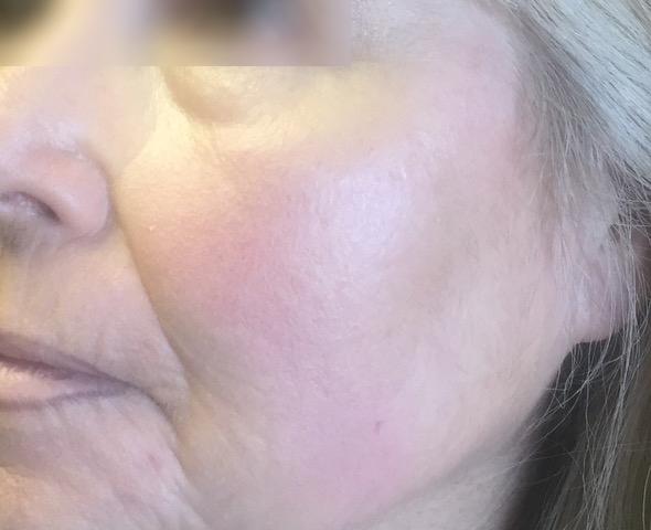 visage-peelings-peeling-depigmentant-centre-laser-medecine-esthetique-marseille-2