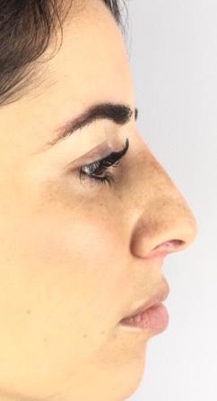 visage-rhinoplastie-medicale-centre-laser-medecine-esthetique-marseille-2