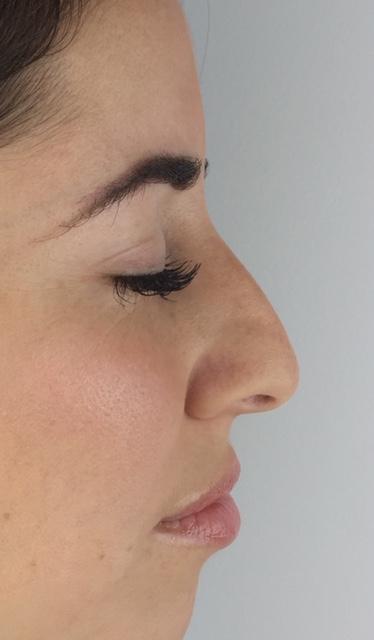 visage-rhinoplastie-medicale-centre-laser-medecine-esthetique-marseille-3